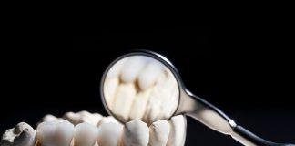 Coroane dentare zirconiu