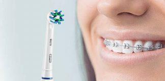 tipuri de aparate dentare
