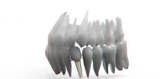 Implanturile dentare